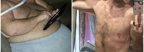 Homem-que-tomava-8-litros-de-refrigerante-por-dia-perde-150-quilos-Fotos