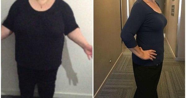 Mulher-de-Melbourne-perde-138-kg-em-18-meses-Fotos